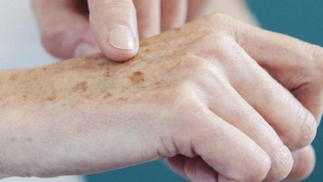 Sociedade Brasileira de Dermatologia terá mutirão de prevenção ao câncer de pele na Bahia